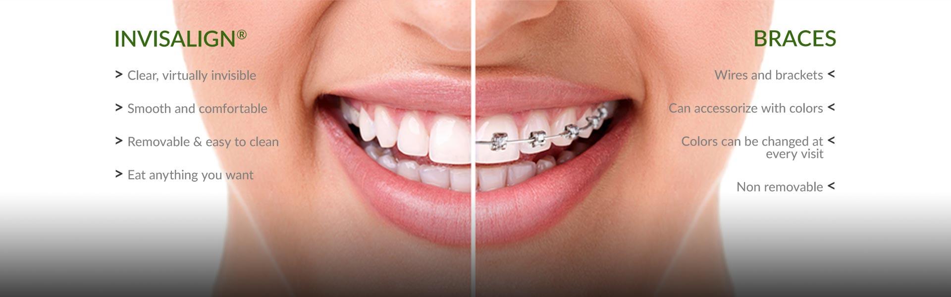 0 5 - ارتودنسي دندان يا سيم كشى دندان؟!