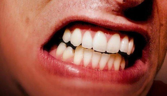 0 660x382 - دندان قروچه (براکسیسم)