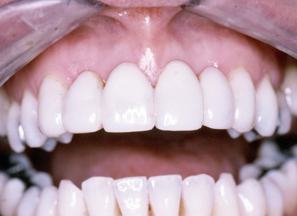 0 7 - ارتودنسي دندان و شايعات موجود!