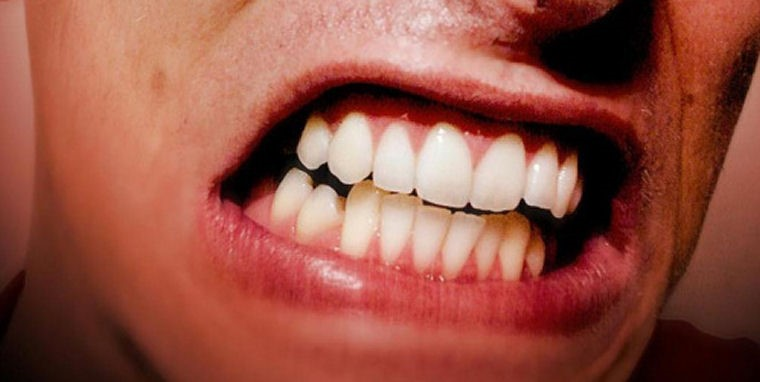 0 - دندان قروچه (براکسیسم)