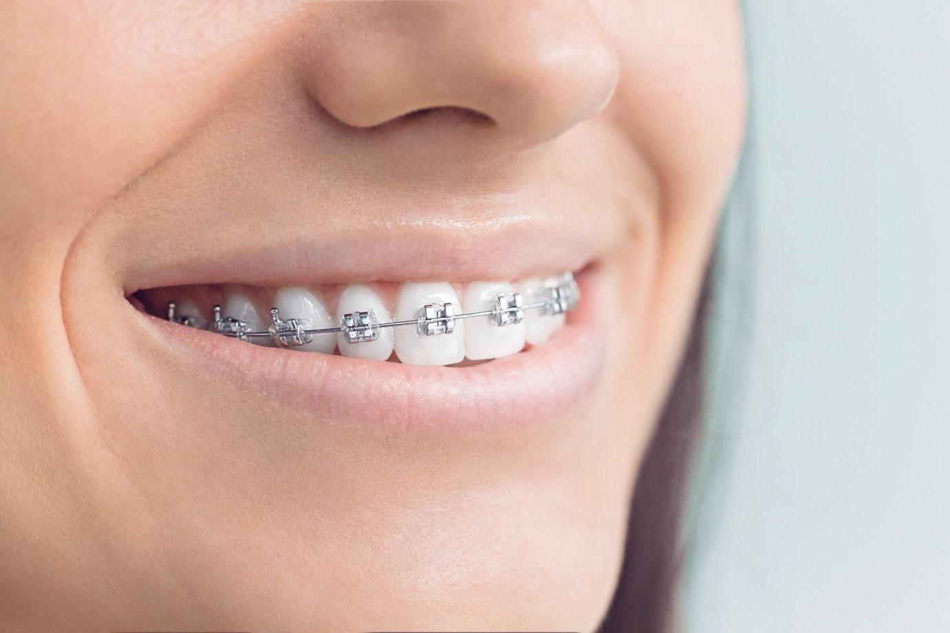 1 6 - ارتودنسي دندان و شايعات موجود!