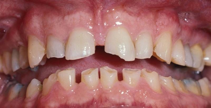 1 - دندان قروچه (براکسیسم)