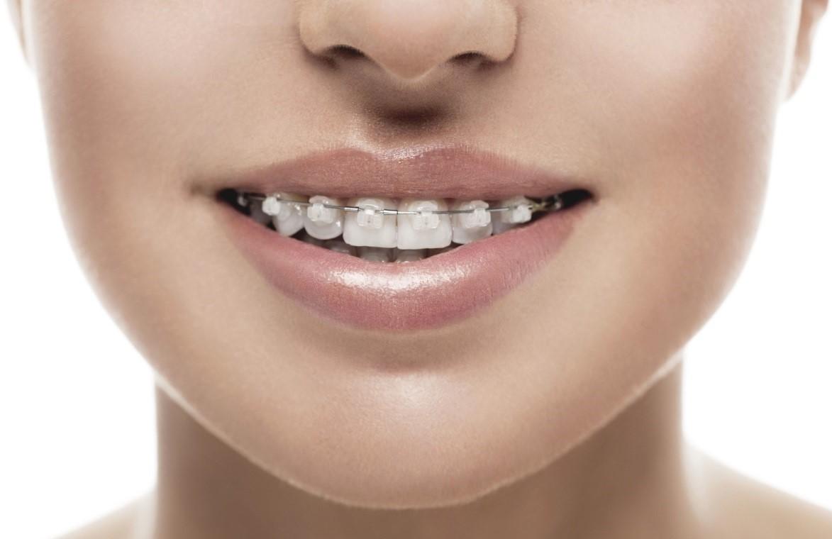 2 5 - ارتودنسي دندان و شايعات موجود!