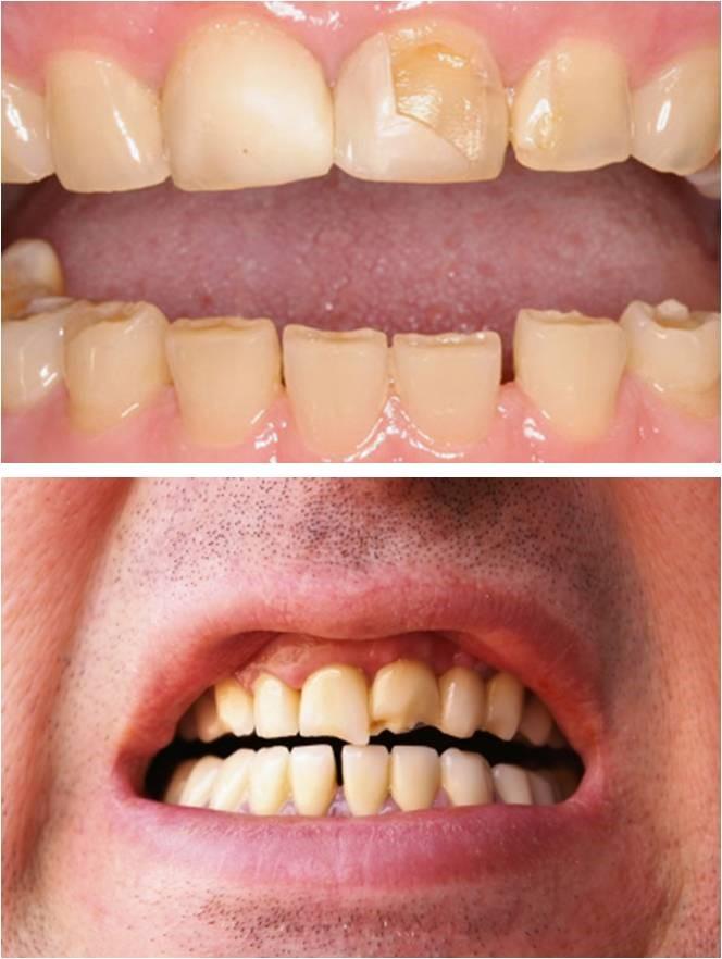 2 - دندان قروچه (براکسیسم)