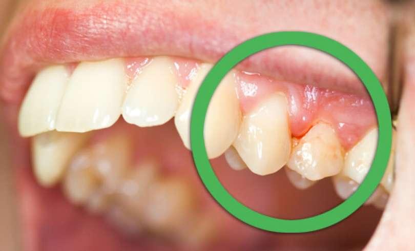 Gingivitis - التهاب لثه و ارتودنسي