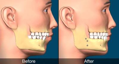 Orthognathic surgery web - جراحی فک و ارتودنسی