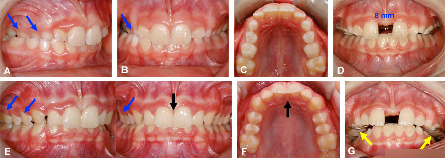 diasteme espace expansion maxillaire orthodontie sherbrooke - ارتودنسى فك بالا