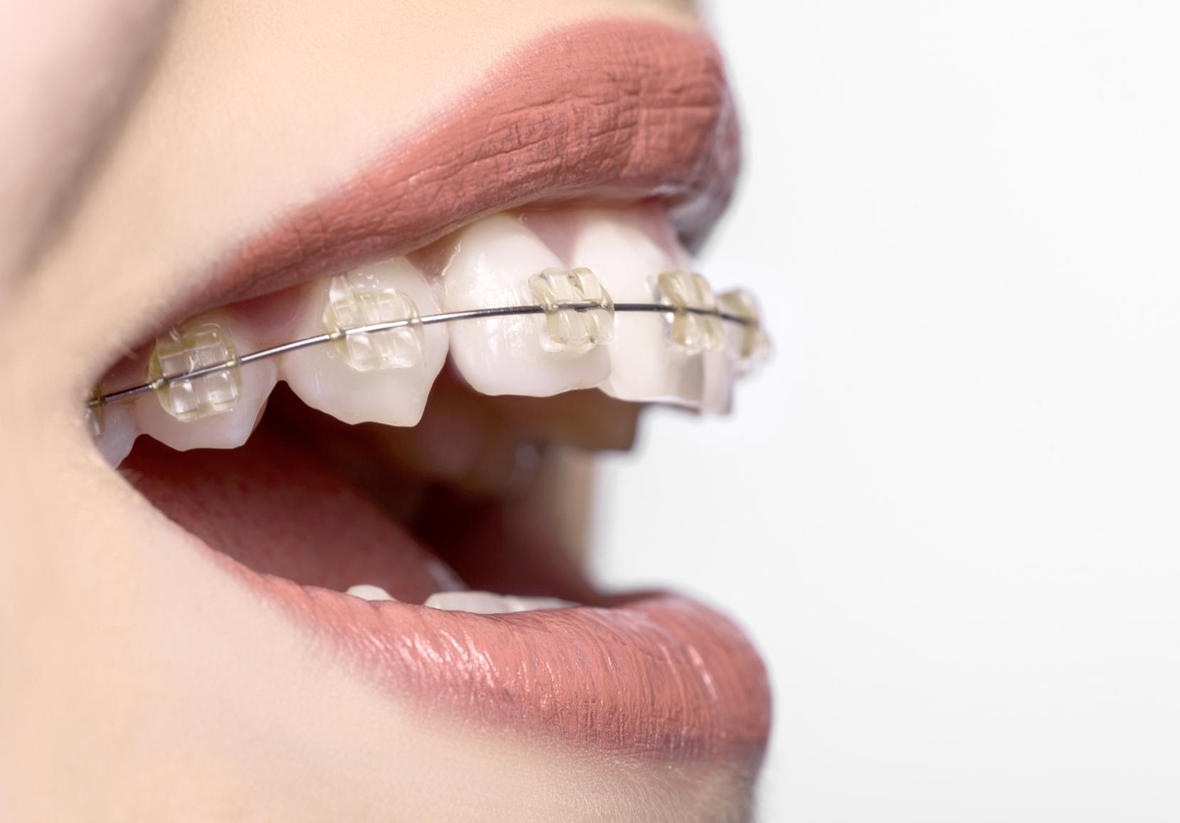 iStock 63907725 MEDIUM - ارتودنسي دندان يا سيم كشى دندان؟!