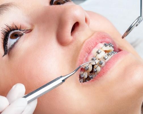 ortho braces spotlight1 - ارتودنسي دندان يا سيم كشى دندان؟!
