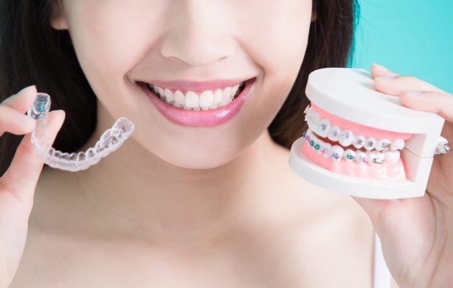1 4 660x420 - ارتودنسي دندان و گزينه هاى موجود