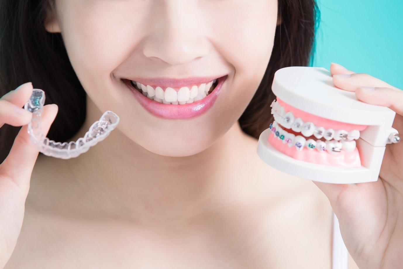 1 4 - ارتودنسي دندان و گزينه هاى موجود