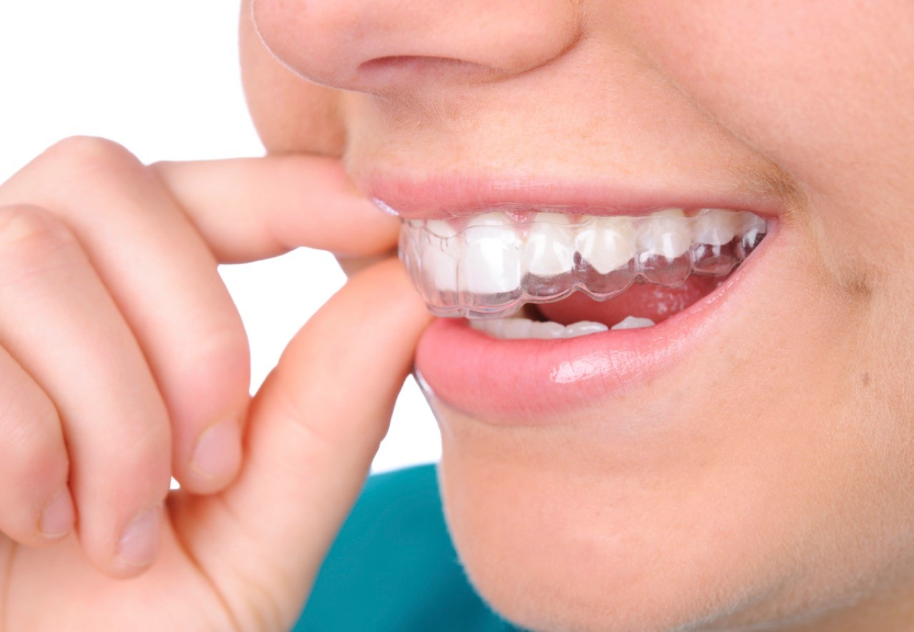 2 5 - ارتودنسي دندان و گزينه هاى موجود