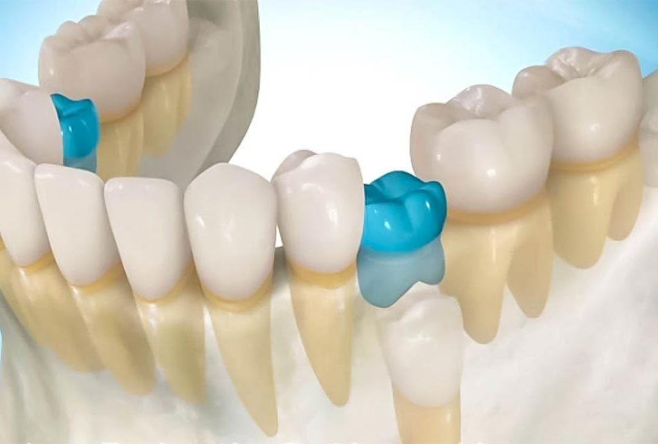 0 1 - انکیلوز دندان