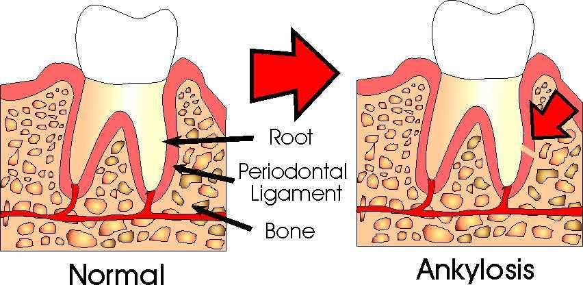 1 1 - انکیلوز دندان