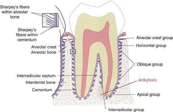 3 - انکیلوز دندان