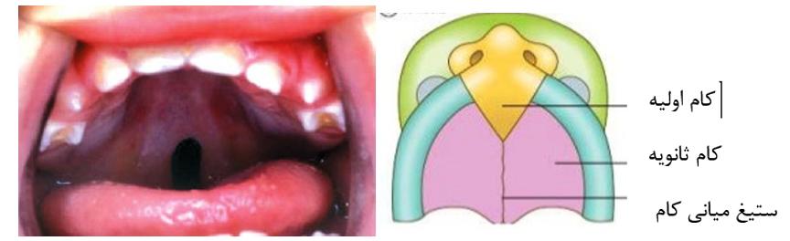 3 - درمان شکاف کام و لب