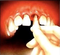 4 1 - انکیلوز دندان