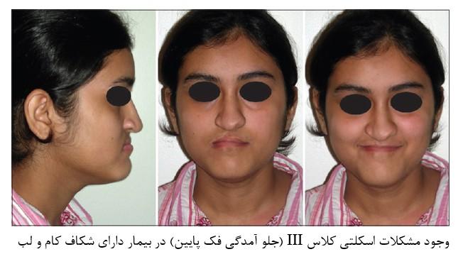 4 - درمان شکاف کام و لب