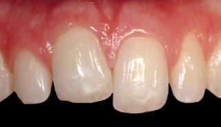 5 1 - انکیلوز دندان