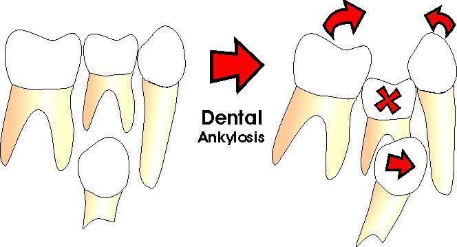 6 - انکیلوز دندان