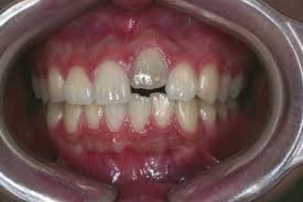 7 - انکیلوز دندان