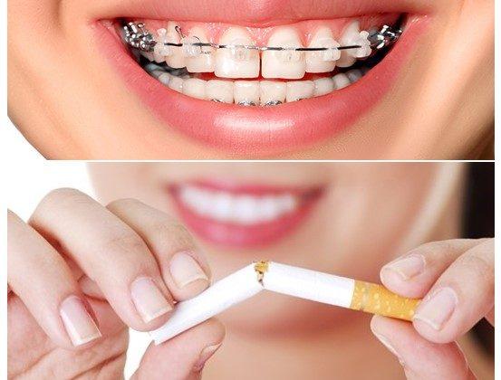 0 553x420 - تاثیر سیگار روی ارتودنسی