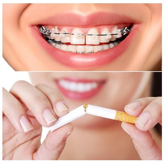 0 - تاثیر سیگار روی ارتودنسی