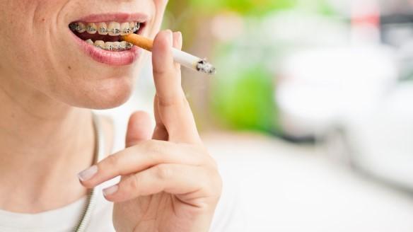 1 - تاثیر سیگار روی ارتودنسی