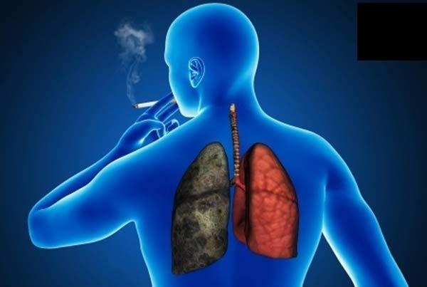 3 - تاثیر سیگار روی ارتودنسی