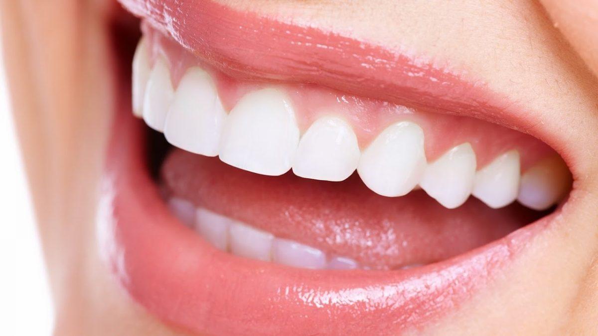 0 2 1200x675 - صاف کردن دندان ها بدون براكت هاى ارتودنسى