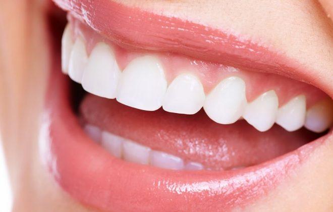 0 2 660x420 - صاف کردن دندان ها بدون براكت هاى ارتودنسى