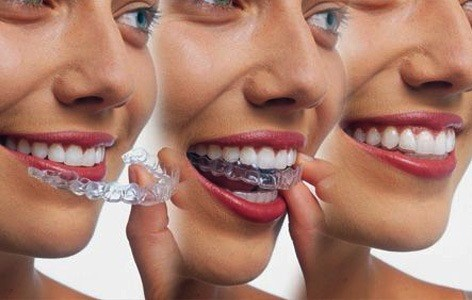 1 2 - صاف کردن دندان ها بدون براكت هاى ارتودنسى