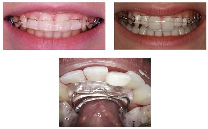 2 2 - صاف کردن دندان ها بدون براكت هاى ارتودنسى