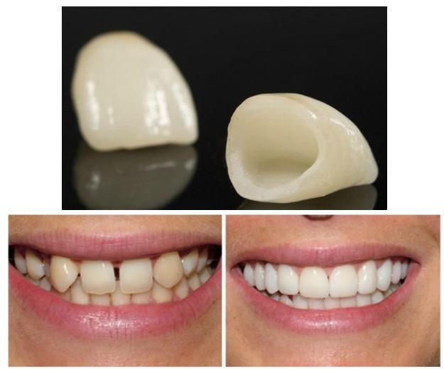 3 2 - صاف کردن دندان ها بدون براكت هاى ارتودنسى