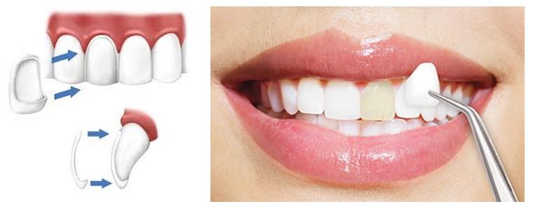 4 2 - صاف کردن دندان ها بدون براكت هاى ارتودنسى