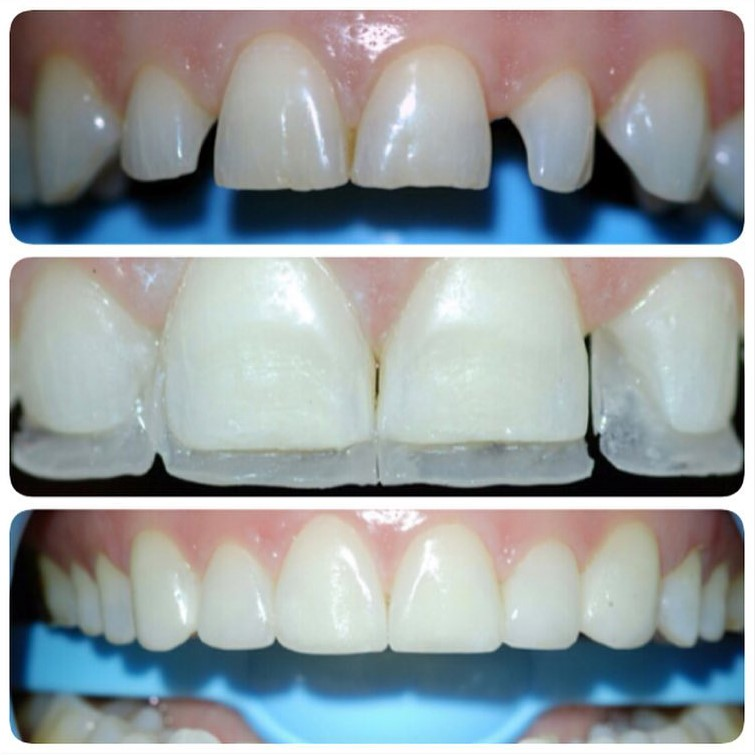 5 2 - صاف کردن دندان ها بدون براكت هاى ارتودنسى