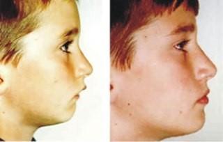 6 3 - انواع ارتودنسي