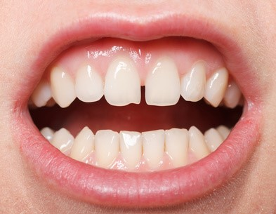 0 1 - دیاستم یا فاصله بین دندان
