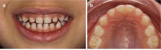 1 2 - دیاستم یا فاصله بین دندان