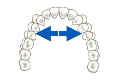 10 - حركت دندان در ارتودنسی
