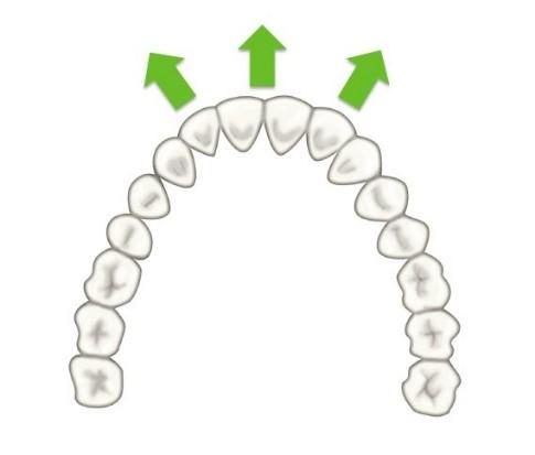 11 - حركت دندان در ارتودنسی
