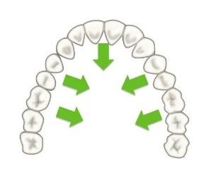 12 - حركت دندان در ارتودنسی