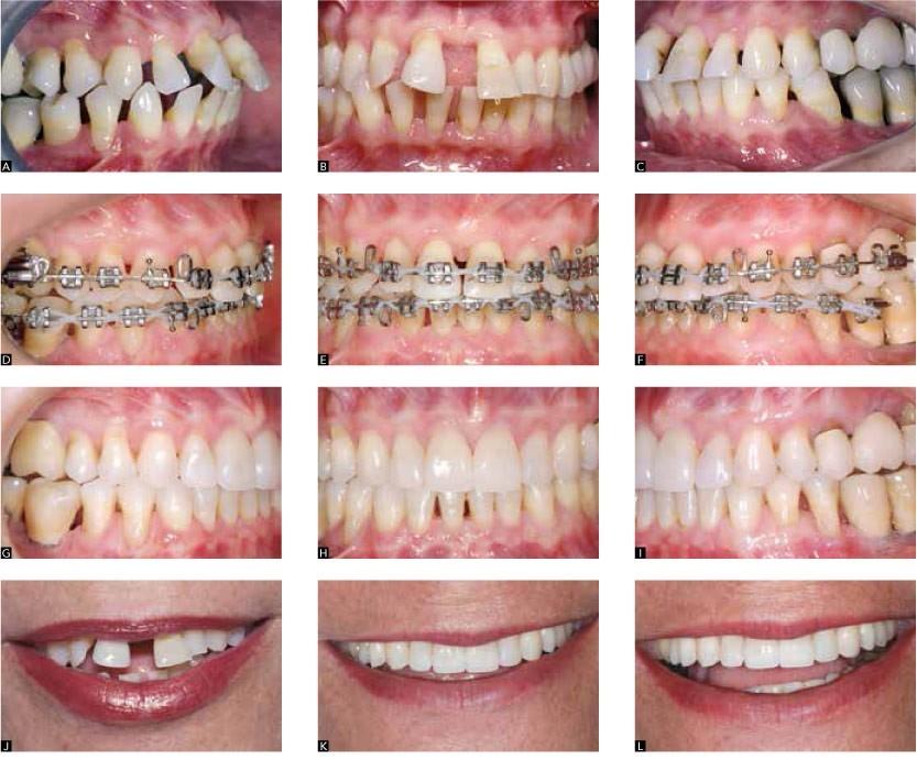 2 2 - دیاستم یا فاصله بین دندان