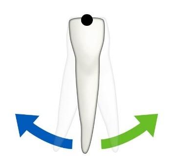 2 - حركت دندان در ارتودنسی