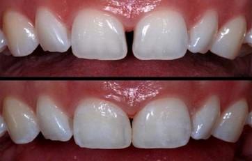 3 2 - دیاستم یا فاصله بین دندان