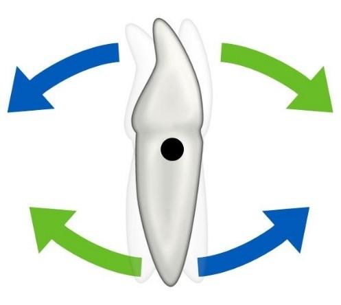 3 - حركت دندان در ارتودنسی