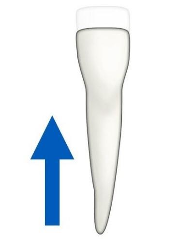 6 - حركت دندان در ارتودنسی