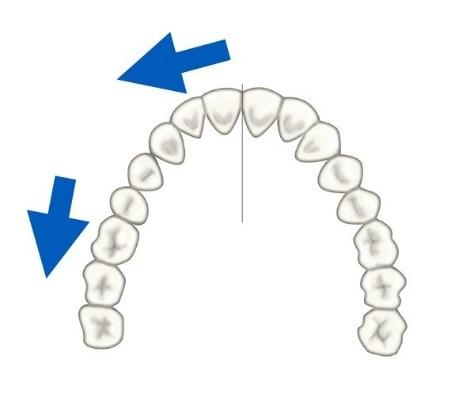 8 - حركت دندان در ارتودنسی