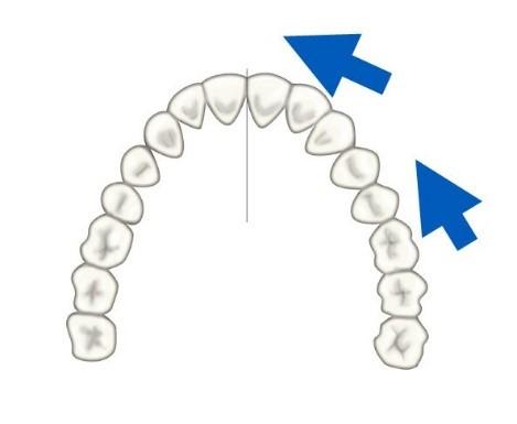 9 - حركت دندان در ارتودنسی