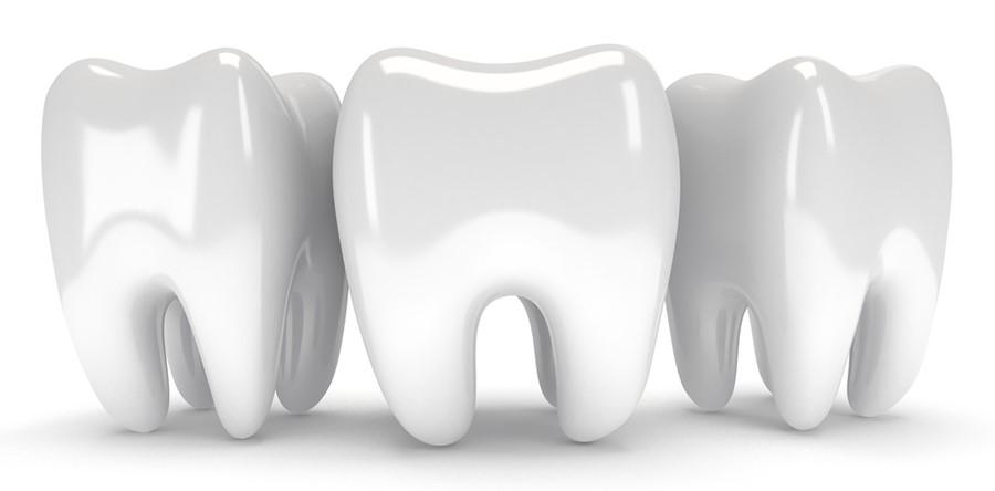 0 3 - روش های تقویت مینای دندان